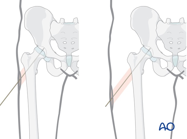 The illustrations show how soft-tissue thickness affects incision placement.