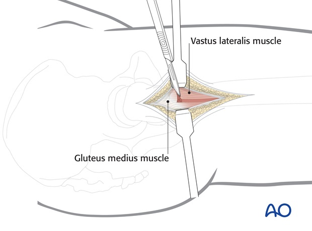 For muscular patients or increased proximal femoral shaft exposure, the vastus lateralis can be reflected anteriorly by ...