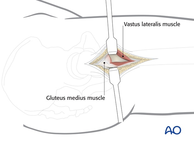 The muscle mass is elevated from the femur and reflected anteriorly.