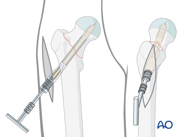 When the screw has reached its final position, the T-handle has to be in line with the longitudinal axis of the femur.