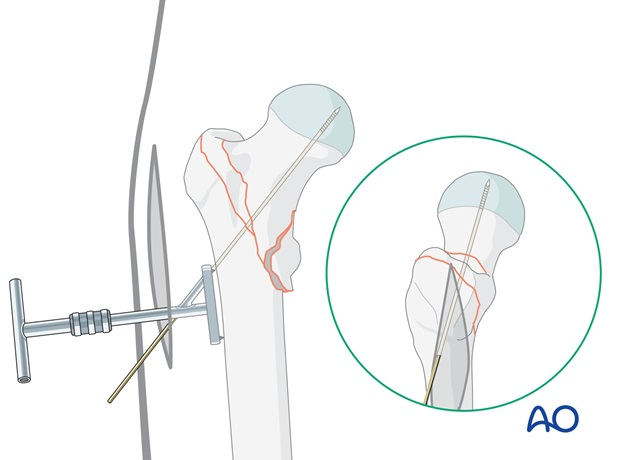 The guide wire is inserted through the aiming device and advanced into the subchondral bone.