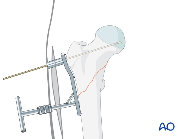 The aiming device is chosen according to the chosen CCD angle of the implant.