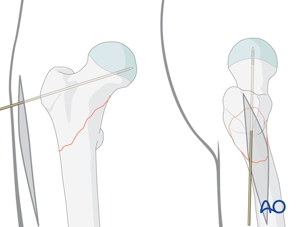 The guide wire is inserted through the aiming device and should be in the caudal half of the femoral neck.