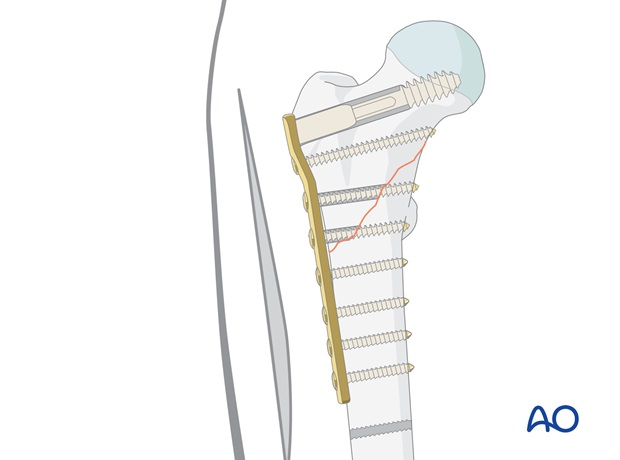The plate is fixed to the femoral shaft with an appropriate number and size of plate holding cortical screws.