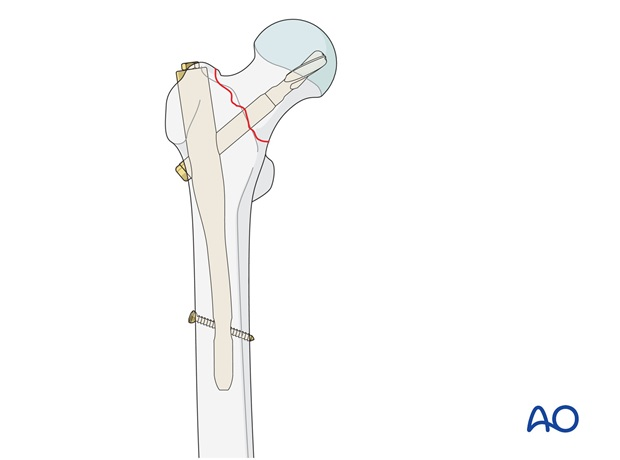 Extramedullary and intramedullary fixation devices are available for unstable type of simple pertrochanteric fractures.