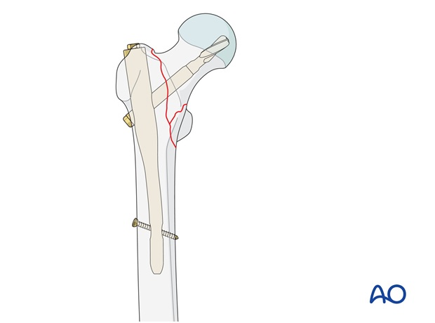 Extramedullary and intramedullary fixation devices are available for unstable type of multifragmentary pertrochanteric fractures