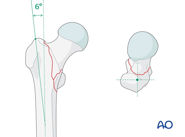 In general, short nails are straight, and therefore, the skin incision should be in line with the femoral shaft axis.