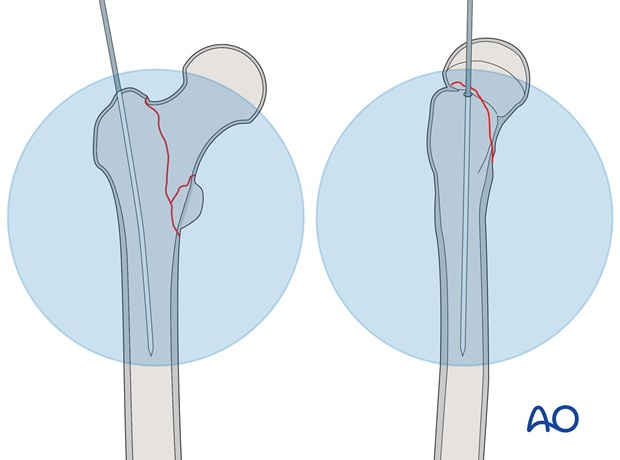 Insert the guide wire into the femoral shaft and check its position using image intensification.