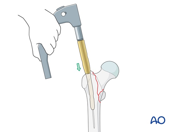 In most patients the nail, mounted on the insertion device, can be inserted manually.