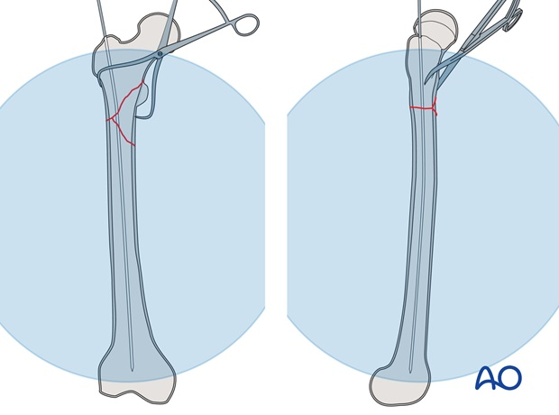 Insert the guide wire into the femoral shaft and check its position using image intensification. Ideally, the guide wire's ...