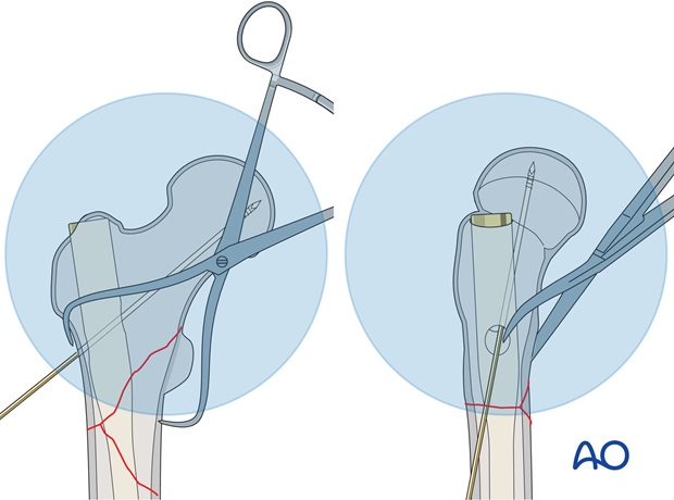 If using a device that takes a blade, the ideal position of the guide wire in the AP plane is in line with the axis ...