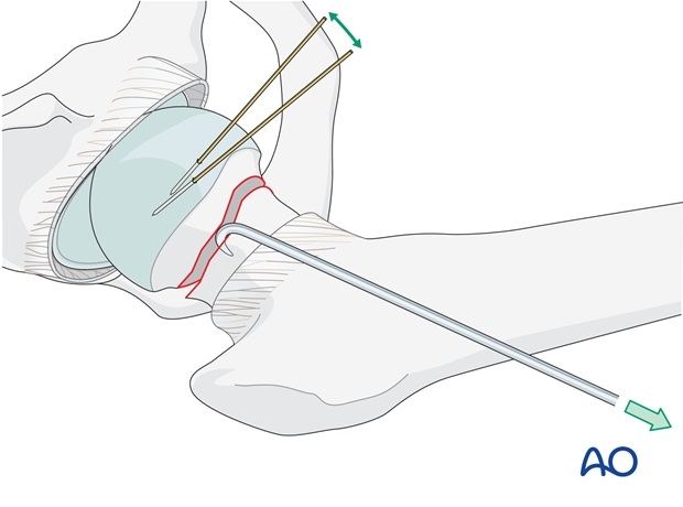 Reduction can usually be obtained with gentle traction and internal rotation of the fractured leg.