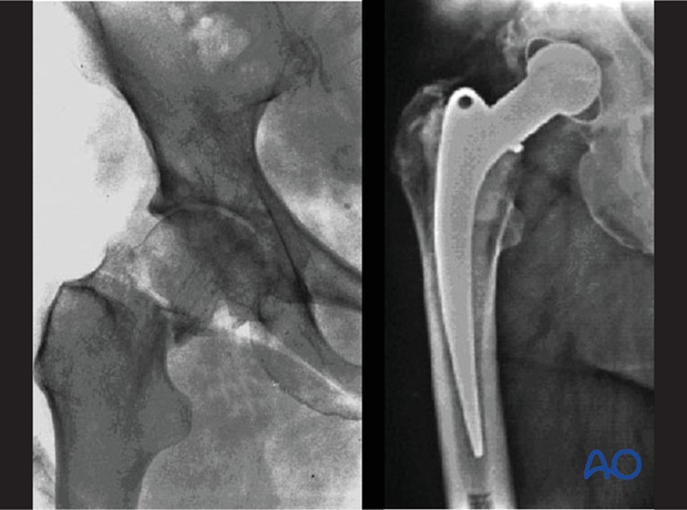 Preexistent osteoarthritis of the hip joint and a femoral neck fracture. Right x-ray: 9 years after total hip prosthesis.