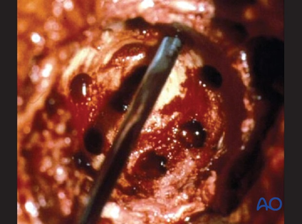 With a corresponding punch the cancellous bone in the drilled holes is impacted.