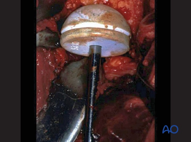 The cup should fill as much of the available space in the acetabulum as possible.
