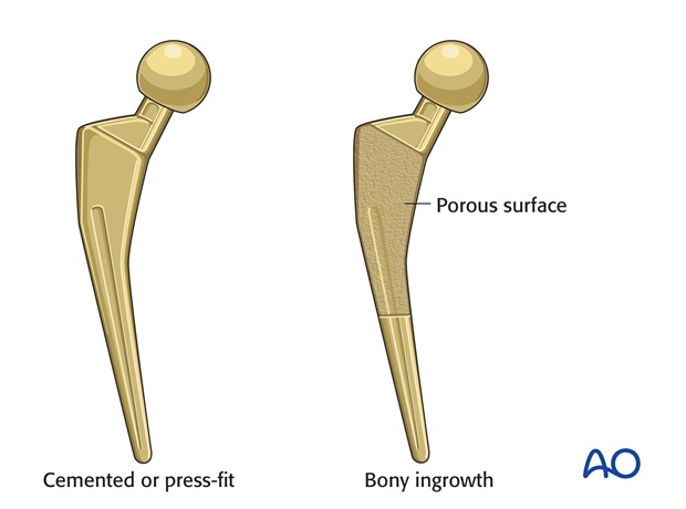 Cemented or uncemented prosthesis