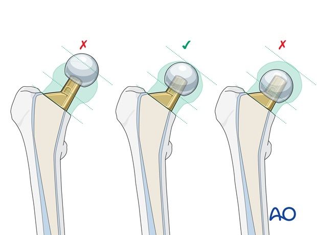 In order to limit the increase of temperature, the amount of cement should be limited to about 5 mm around the prosthesis.