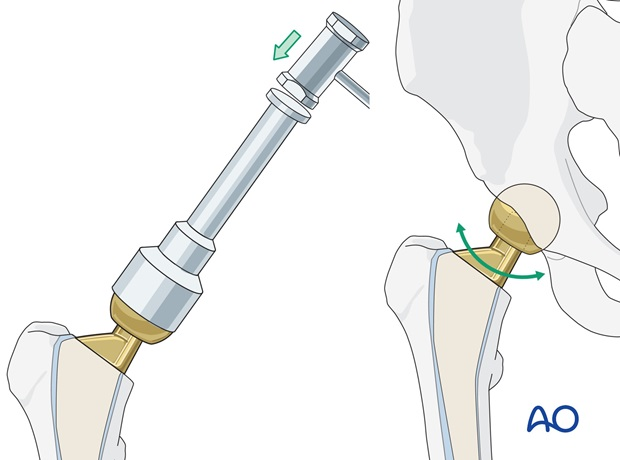 Attach the definitive femoral head to the stem, and reduce the hip.