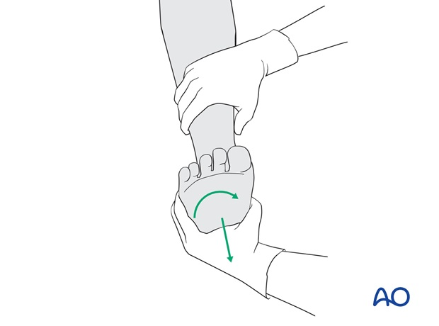 By gentle traction and internal rotation, the hip joint can be reduced.