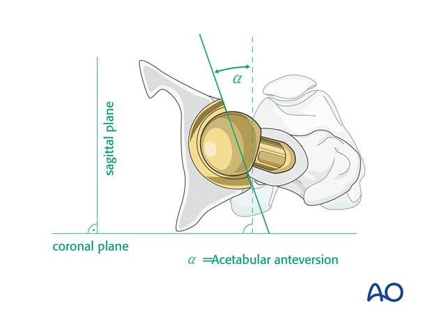 Orientation of acetabular component