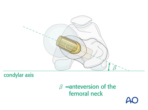 Ensure correct rotation of the prosthesis