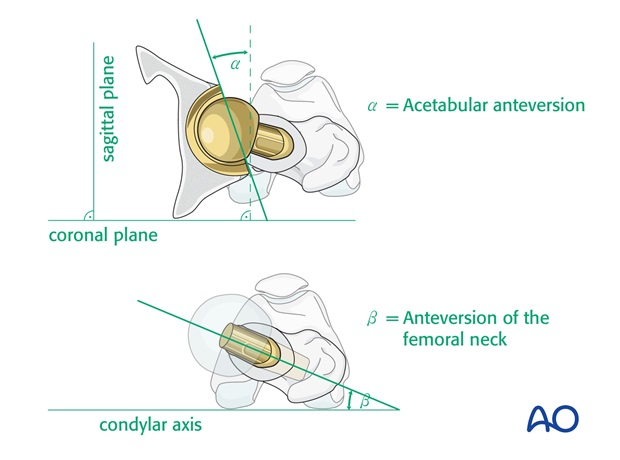 Ensure correct rotational alignment (normal anteversion) of both acetabular and femoral components.