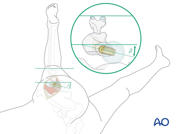 """a """"Figure-four"""" position (flexion to 90° combined with adduction and external rotation)."""