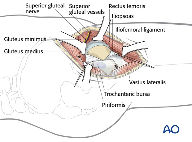 …and place two retraction sutures, anteriorly and posteriorly. Protect the acetabular labrum.