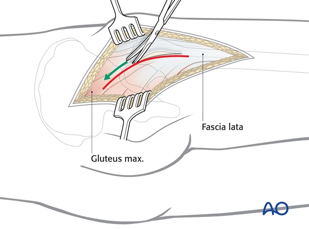 Dissection of fascia lata