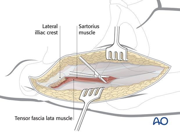 Release the abductor muscles from the lateral iliac crest and deepen the incision anteriorly, along the lateral border of ...
