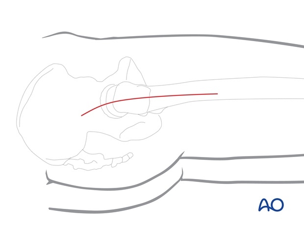 Make a longitudinal incision through skin and subcutaneous tissue, with its proximal end directed slightly posteriorly.