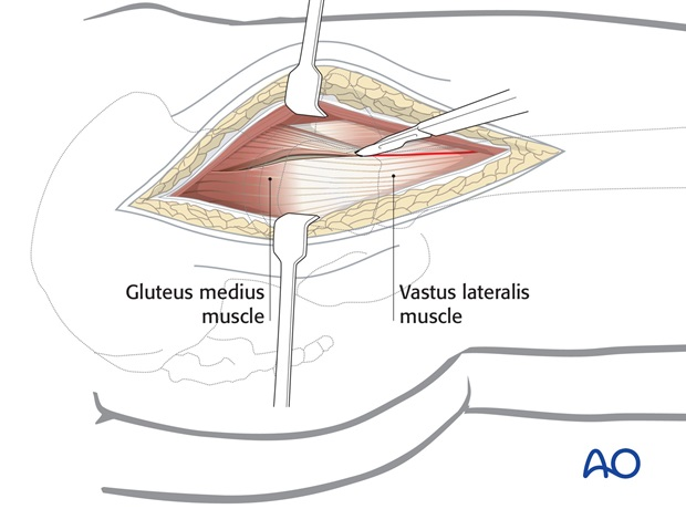Divide the fascia lata over the greater trochanter, extending it distally over the proximal femoral shaft and proximally ...