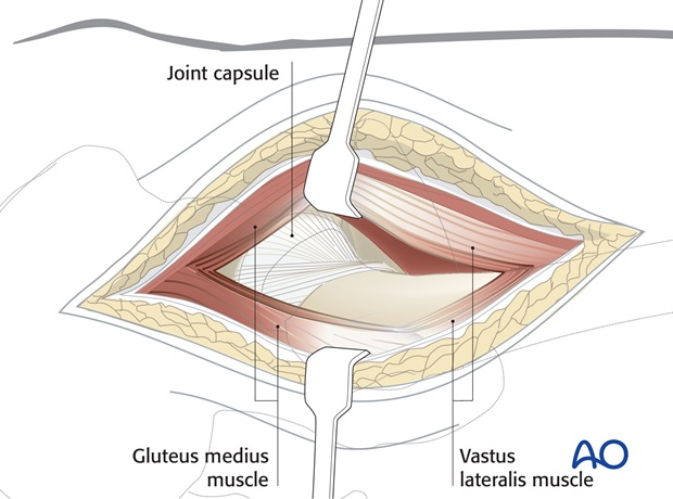 Deepen the incision through the gluteus medius and minimus proximally, retracting the anterior flap to show hip capsule ...