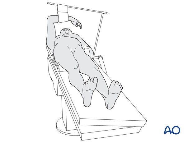 The patient is positioned supine on a conventional operating table, or on a fracture table. C-arm image intensifier control ...