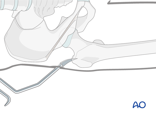Antegrade nailing femoral shaft – trochanteric entry point – Guide wire