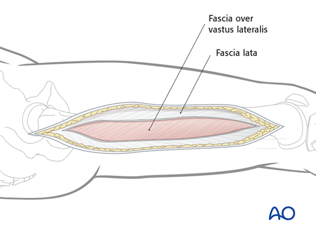 Lateral approach to femoral shaft – Opening the fascia lata
