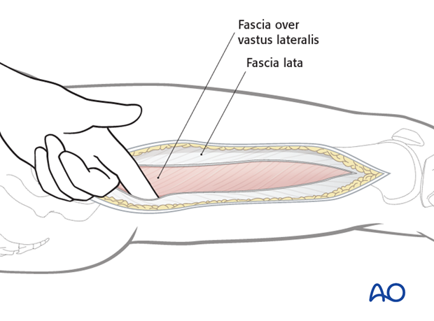Lateral approach to femoral shaft – Vastus lateralis fascia lata
