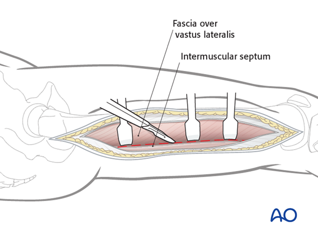 Lateral approach to femoral shaft – Incision fascia vastus lateralis