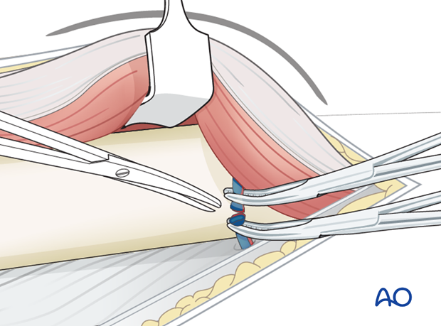 Lateral approach to femoral shaft – Ligation of perforating vessels