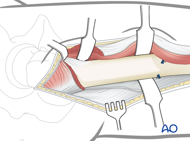 Lateral approach to femoral shaft – Detachment of vastus lateralis