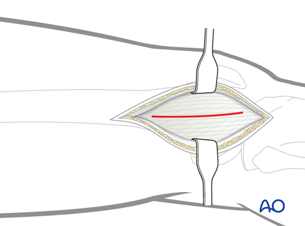 Minimally invasive osteosynthesis – Approach femur – Midshaft – Distal femoral shaft