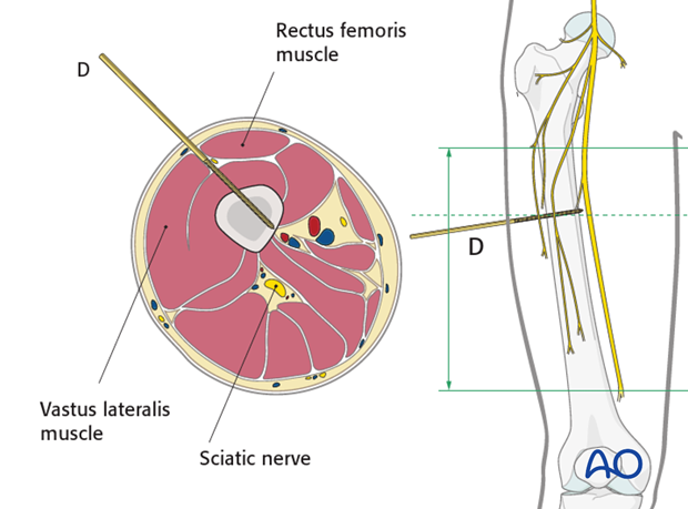 Safe zones femoral shaft – Midshaft - Anterolateral