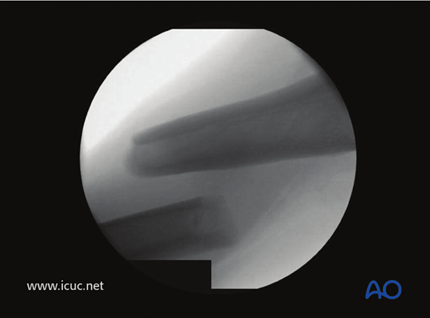 Midshaft fracture in femur, in traction but not reduced