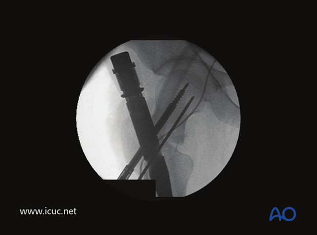 Intraoperative image showing the first screw inserted into the femoral head.