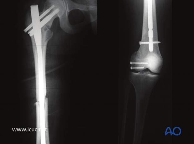Postoperative images showing complete fixation of the ipsilateral femoral neck, femoral shaft, and distal femur condylar fracture