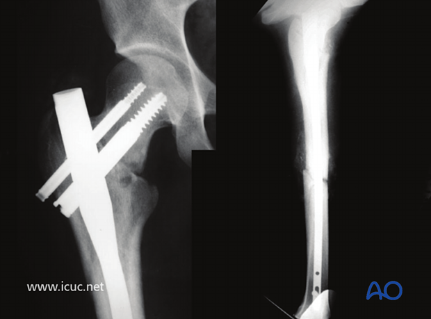 17 weeks postoperative images showing initial femoral neck healing without displacement, but still minimal callus at the midshaft fracture