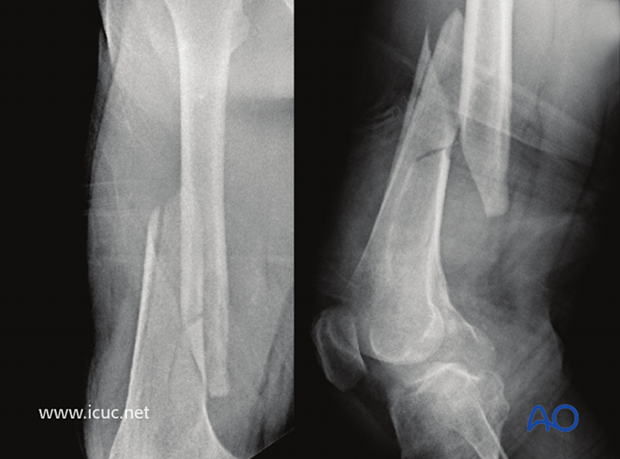 Preoperative X-ray of a closed wedge fracture in the distal third of the proximal femur in a 70-year old male