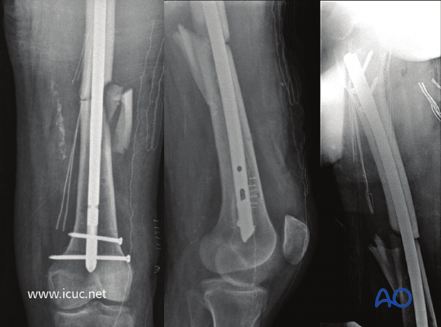 Two weeks later, the patient is stable enough for insertion of a reamed, locked, femoral nail.