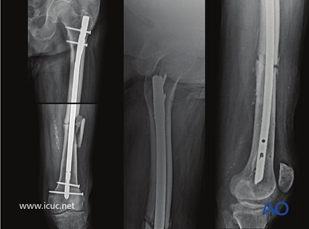 At 24 weeks there is still good fracture alignment, but there is now a gap on the medial side.