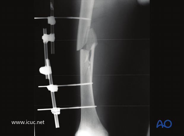 Preoperative AP image of a midshaft fragmentary wedge fracture in a 20-year-old polytrauma patient